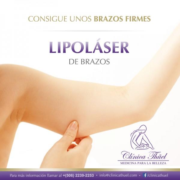 Lipolaser-Brazos