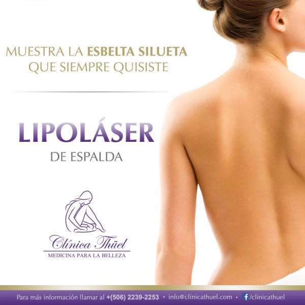 Lipolaser-Espalda